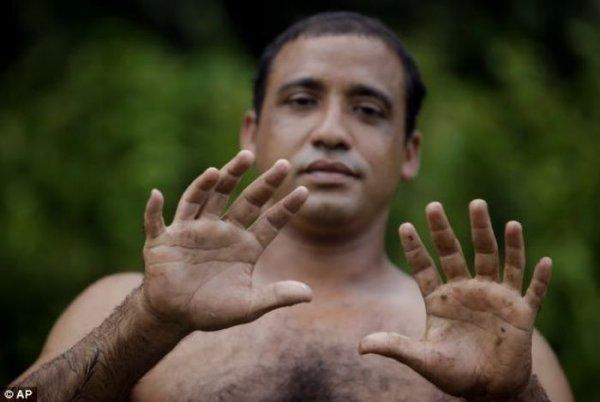 Человек с 24 пальцами