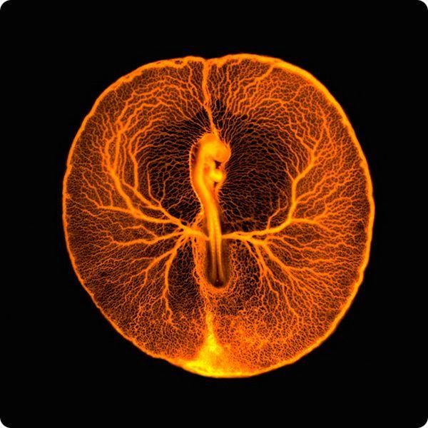neobychnye-fotografii-iz-mira-biomediciny-06