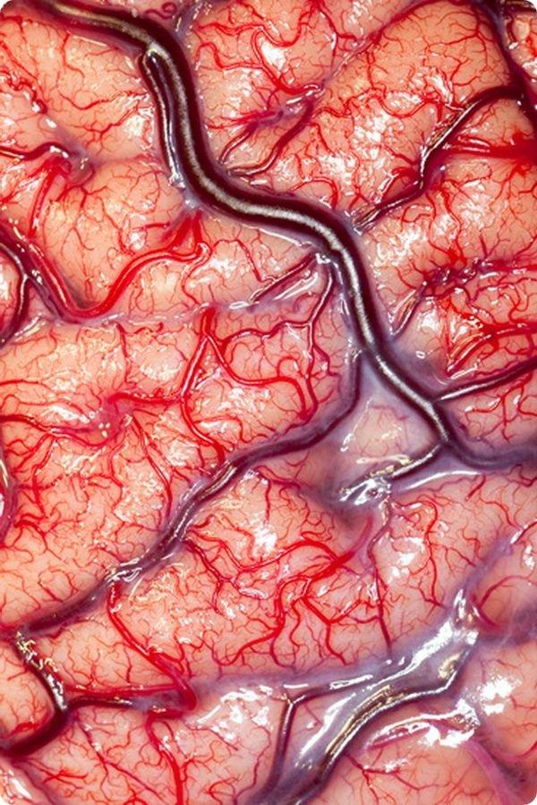 neobychnye-fotografii-iz-mira-biomediciny-08