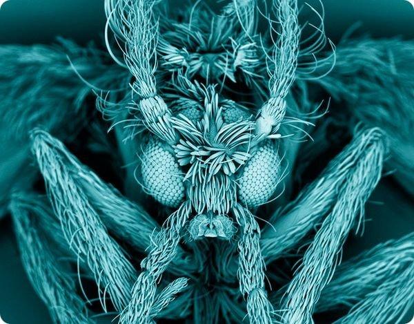 neobychnye-fotografii-iz-mira-biomediciny-09