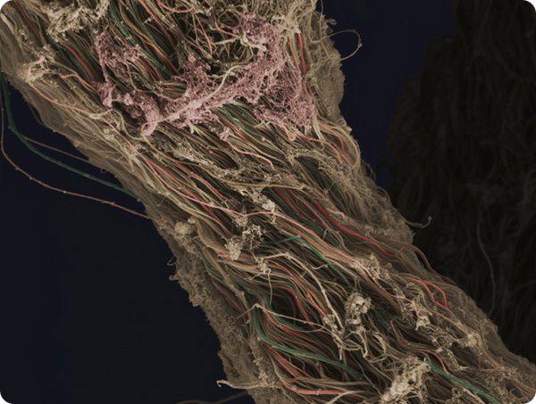 neobychnye-fotografii-iz-mira-biomediciny-16