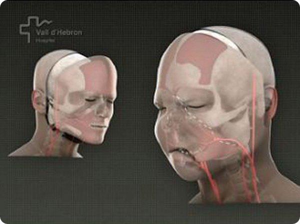 Полная пересадка лица