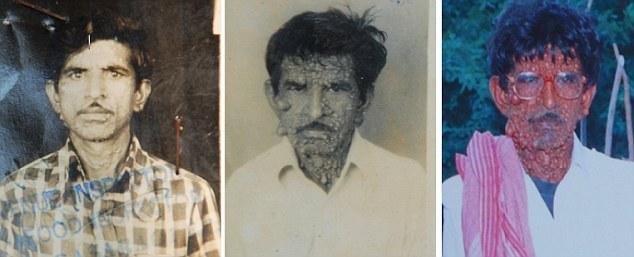 Человек-бородавка из Индии