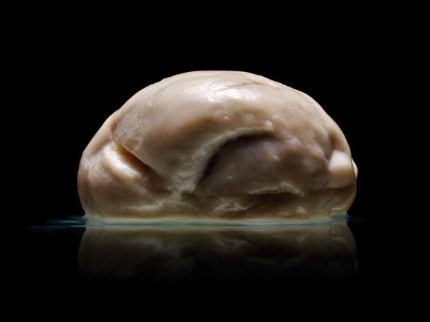 Ученые обнаружили мозг без извилин