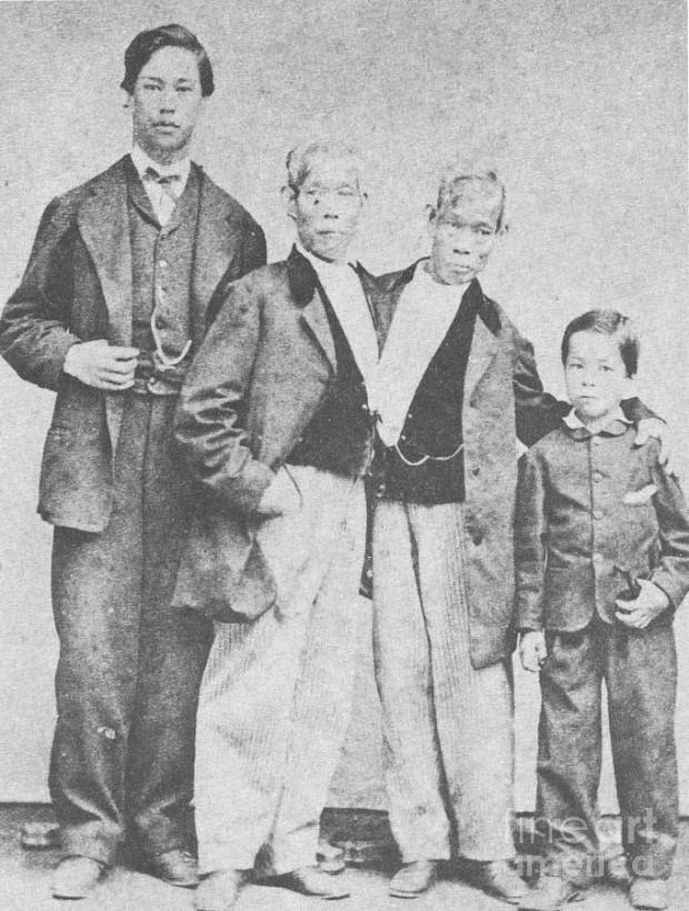 Первые сиамские близнецы жили каждый своей жизнью