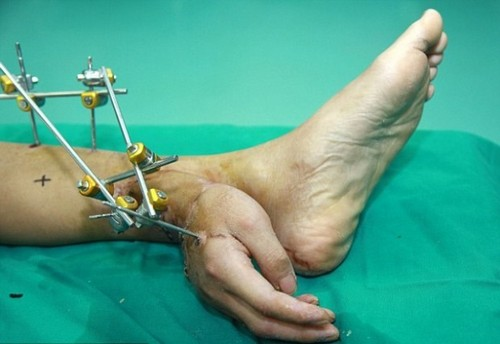 Китаец месяц прожил с рукой, пришитой к его ноге