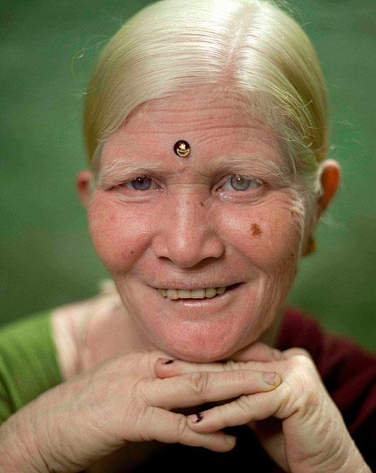 samaya-bolshaya-semya-albinosov-v-mire-3