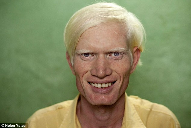 samaya-bolshaya-semya-albinosov-v-mire-7