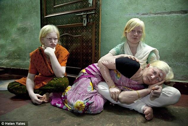 samaya-bolshaya-semya-albinosov-v-mire-9
