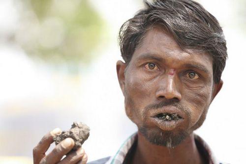 Индиец уже 20 лет есть одни камни