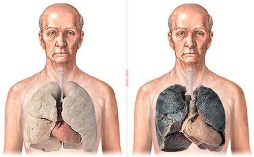 12 фактов, которые вы точно не знали о человеческих легких