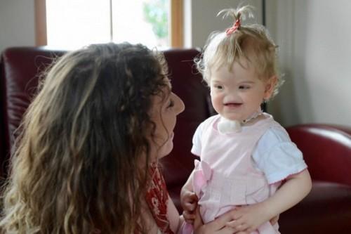 Тесса Эванс: девочка, которая родилась без носа