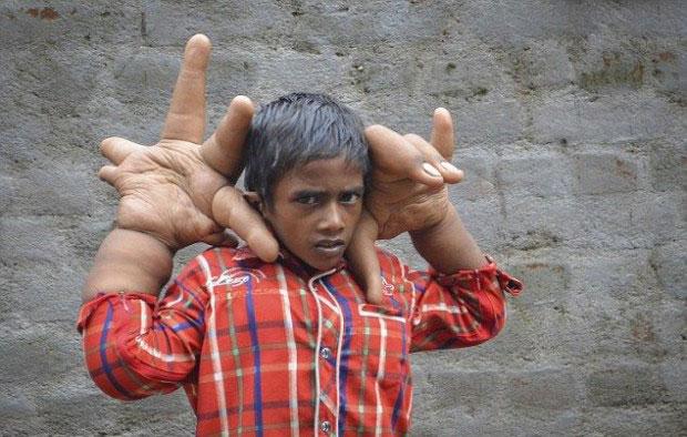 Калим: мальчик с гигантскими руками