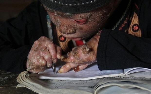 Ари Вибово: мальчик, который сбрасывает кожу